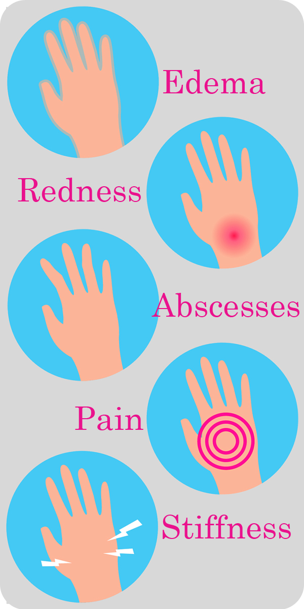 What does Arthritis Feel Like-What does Arthritis Look Like-Explained In Graphics-Pain-Redness-Edema-Stiffness-Abcesses